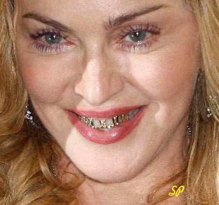 Фото знаменитой голливудской кинозвезды Мадонны с широкой улыбкой и при этом видны её необычные золотые коронки